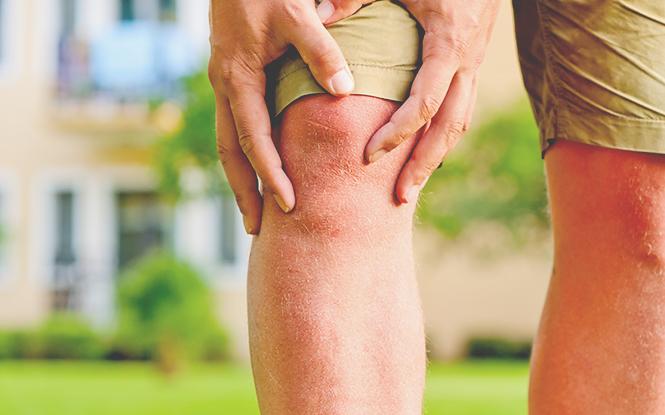 무릎통증의 증상1