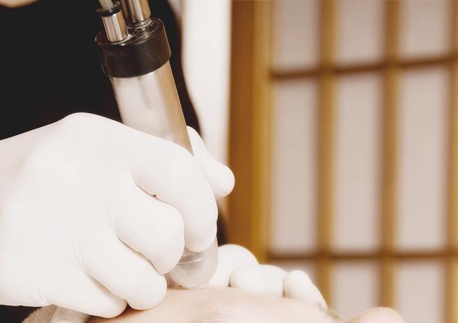 고주파디스크 수핵감압술 관련 이미지3